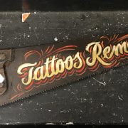 'TATTOOS REMOVED' SAW